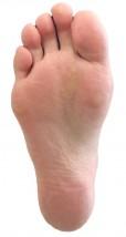 足の痛みのいろいろ【足底筋膜炎(足底筋膜症)】