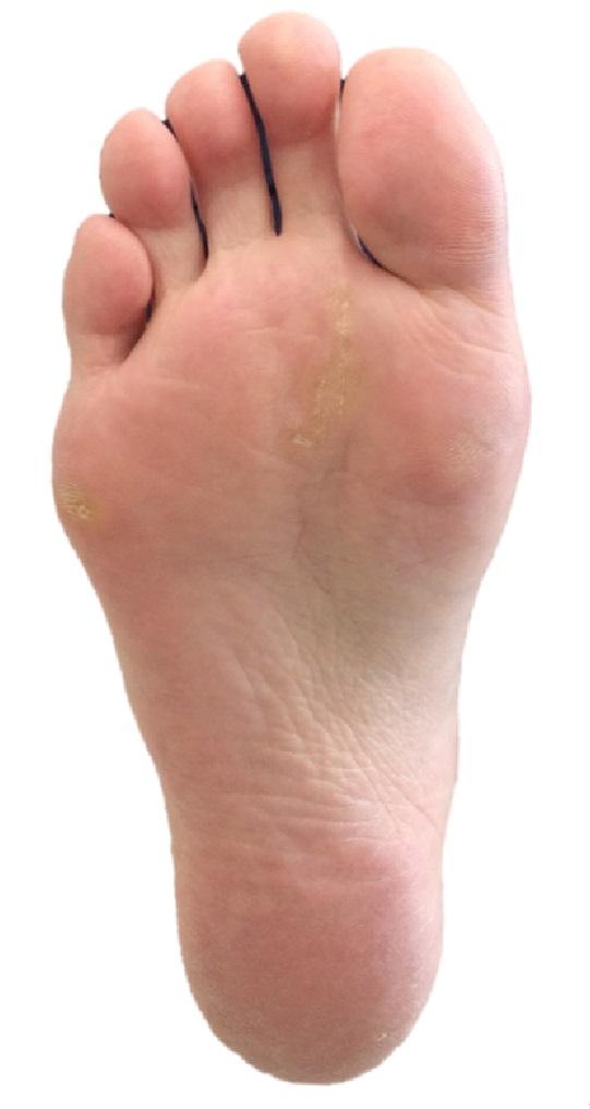 足の痛みのいろいろ【外脛骨障害】