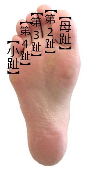 足の痛みのいろいろ【外反母趾・内反小趾①】