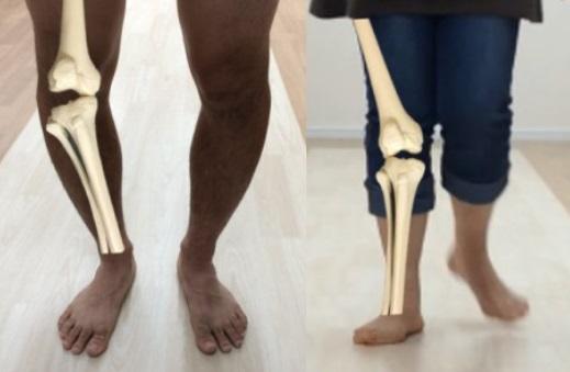 『X脚』『O脚』でお悩みの方へ。『膝』のお話①