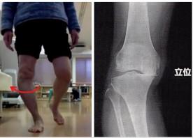 膝の痛み① -痛みの原因は…?軟骨の擦り減り?-
