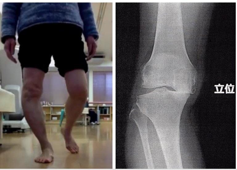 『X脚』『O脚』でお悩みの方へ。膝のお話②