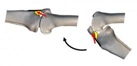 膝の痛み④ -膝蓋下脂肪体(しつがいかしぼうたい)-