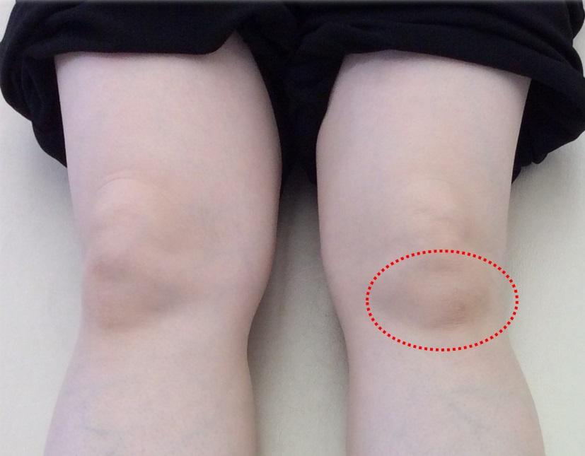 膝の痛み③ -膝蓋下脂肪体(しつがいかしぼうたい)-