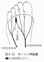インソールと足の話③ -横アーチとモートン病-
