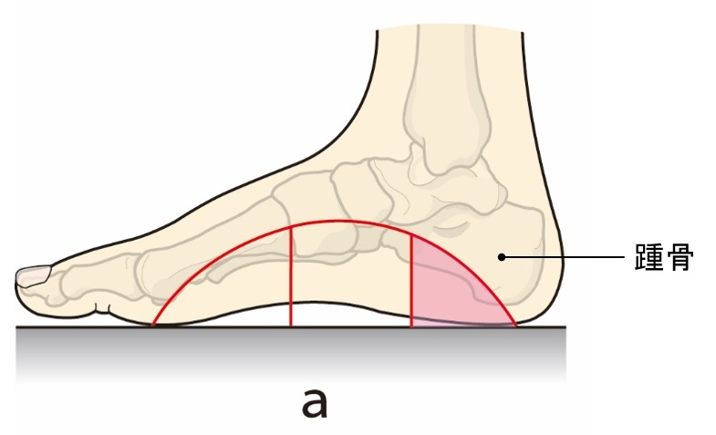 インソールと足の話② -偏平足・ハイアーチとインソールの形-