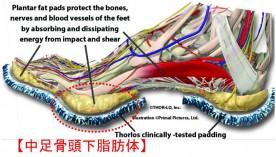 この足の裏の痛みって、モートン病? ひょっとしたら…中足骨頭下脂肪体萎縮?
