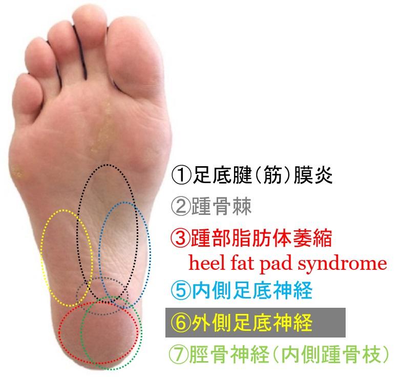裏 足 痛い の 外側