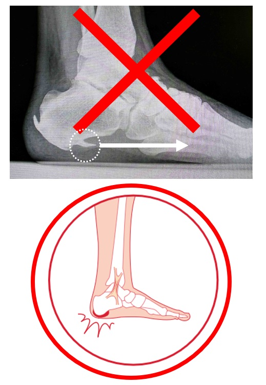 足底・踵の痛み ー『踵骨棘』足底筋膜が引っ張るという誤りー